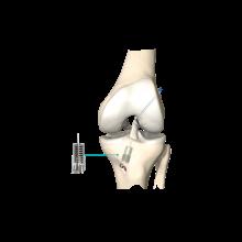 Implant Ligamys